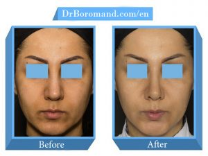 DrBoromand-Rhinoplasty