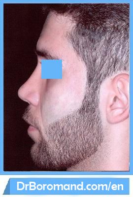 Dr Peyman Boromand - Rhinoplasty