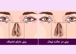 عمل جراحی انحراف بینی