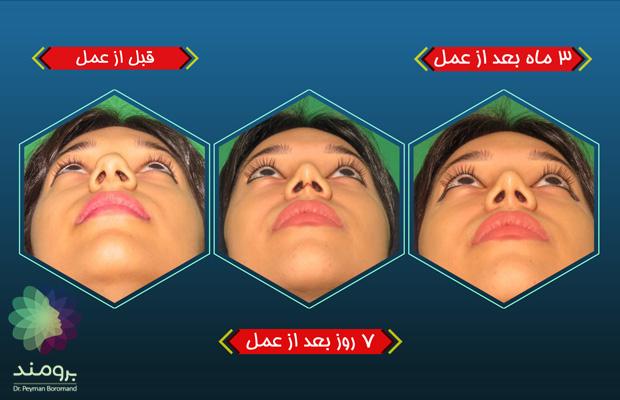 عمل بینی باز