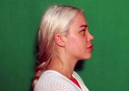 کاهش تورم بینی
