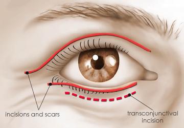 در جراحی هر دو پلک پزشک از سه جا پلک را برش می زند